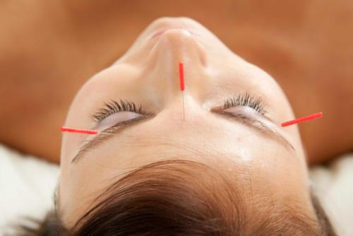acupuntura4